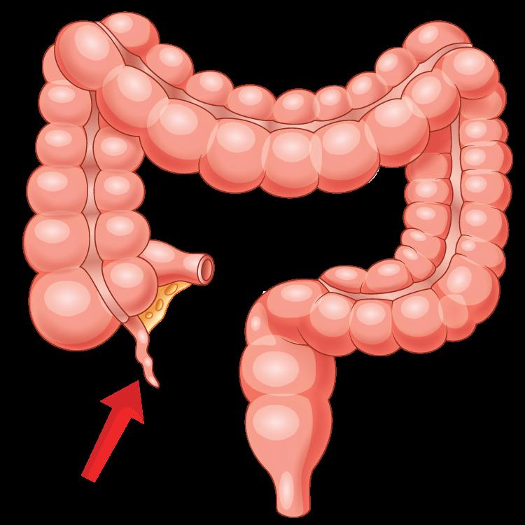 appendix แปลว่า ไส้ติ่ง