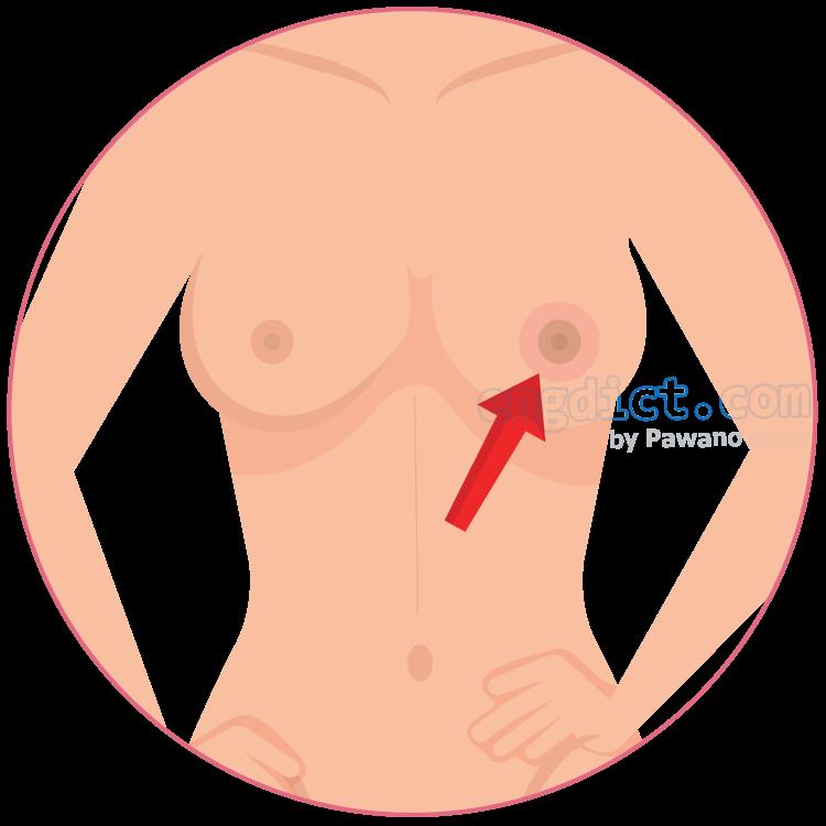 nipple แปลว่า หัวนม